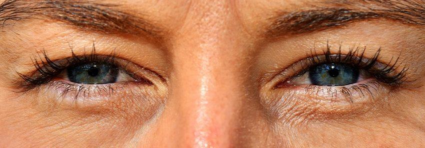 øjenlågsoperation kan forbedre dit udseende